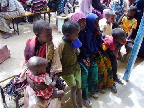 Ảnh báo động về trẻ em suy dinh dưỡng ở Somali