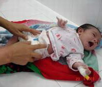 Chăm sóc rốn cho trẻ sơ sinh - Chăm sóc bé - Bé 1 tháng tuổi - Chăm sóc trẻ sơ sinh