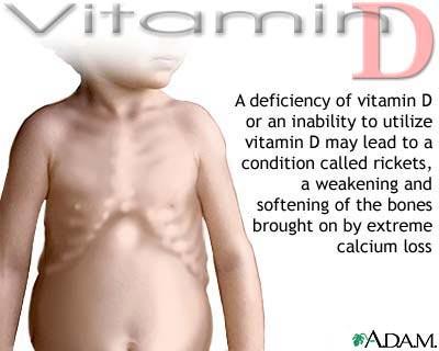 coi-xuong-vitamin-d