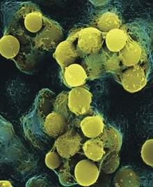 Vi khuẩn liên cầu và bệnh thấp tim