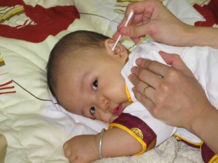 Ngoáy tai bằng tăm bông có thể gây điếc cho trẻ