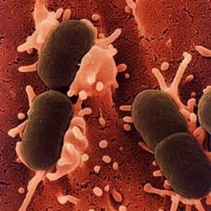 vi-khuan-e-coli-trong-mau-gay-ra-nhiem-khuan-huyet