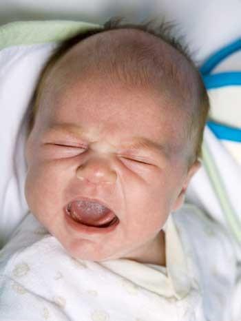 Trẻ sơ sinh bị chảy nước mắt