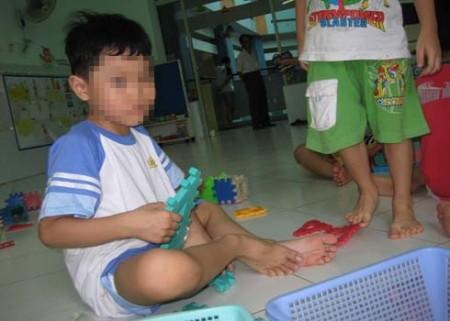 Trẻ lười vận động có nguy cơ mắc bệnh tim cao