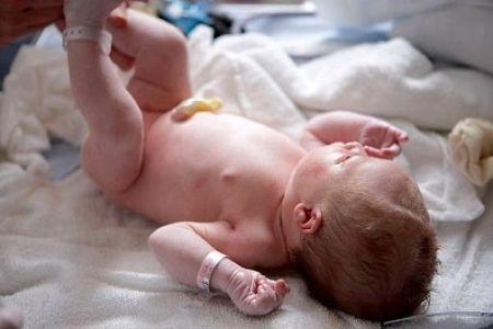 Cần lưu ý khi chăm sóc rốn trẻ sơ sinh