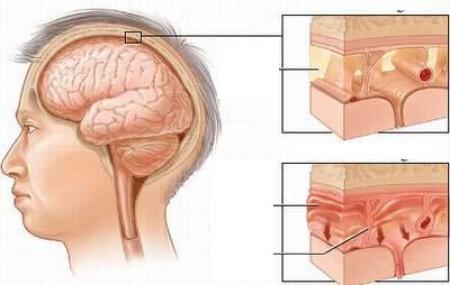 Viêm màng não mủ không chỉ có ở trẻ em