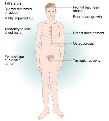 Biểu hiện của bệnh klinefelter ra bên ngoài cơ thể nam giới