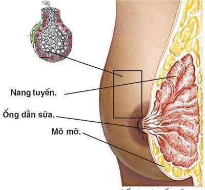 Cẩn trọng với viêm tuyến sữa sau khi sinh