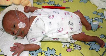 Viêm ruột hoại tử sơ sinh là bệnh thường gặp ở trẻ được sinh non
