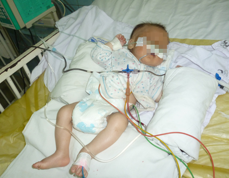 Bệnh nhi bị suy kiệt đang được chăm sóc tại Bệnh viện Nhi Đồng 2.