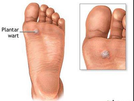 Tổn thương hạt cơm ở gan bàn chân.