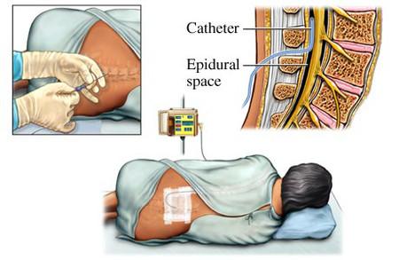 Thủ thuật gây tê ngoài màng cứng