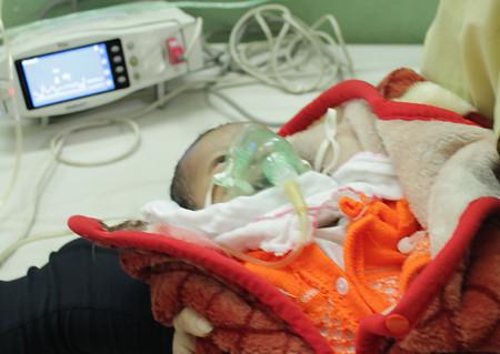 Bé Nguyễn Tiến Tuấn đang được thở máy tại khoa Tim mạch, Bệnh viện Nhi trung ương.