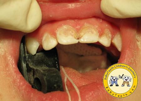 Có nhiều nguyên nhân gây ra chứng vàng răng ở trẻ