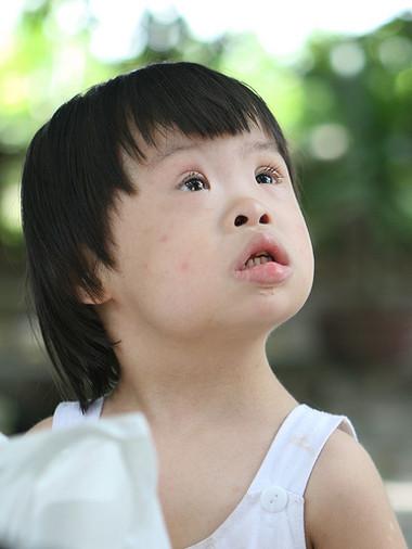 Nguyên nhân gây ra hội chứng down bẩm sinh thường là do có sự bất thường ở nhiễm sắc thể số 21, thường gặp ở những phụ nữ sanh con trên 35 tuổi