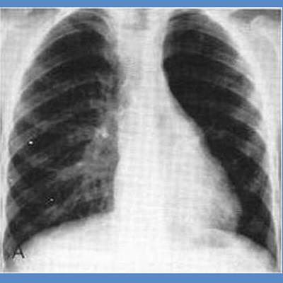 Hình ảnh viêm tiểu phế quản xơ hóa tắc nghẽn trên phim chụp Xquang.