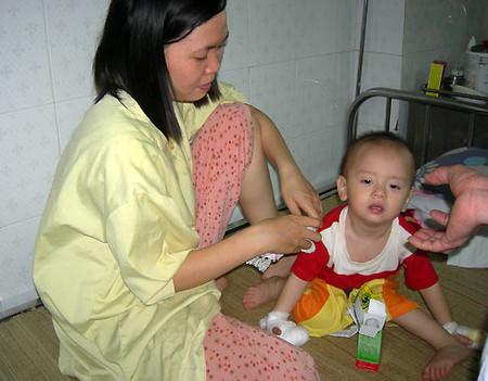 Bé gái 16 tháng tuổi bị bỏng vì cho tay vào nồi canh nóng.