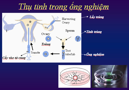 Thụ tinh trong ống nghiệm - kỹ thuật hỗ trợ sinh sản đang dần phổ biến hơn
