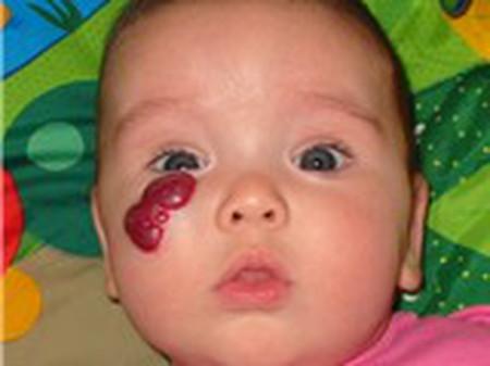 Bướu máu quanh mắt điều trị ra sao?