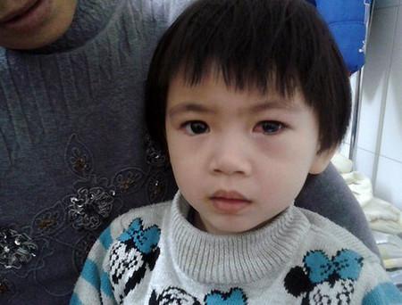 Mắt trái của bé Vi vẫn còn đỏ nhưng rất may thị lực không bị ảnh hưởng nhiều.