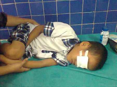 Cháu bé bị thương nặng ở mắt do đùa chơi với em.
