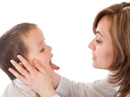 Trẻ bị viêm họng có nên dùng kháng sinh ?