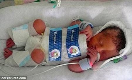 Bé gái Lilly Cracknell (Anh) được các bác sĩ cứu sống dù đã ngừng thở 30 phút nhờ được ủ lạnh trong ba ngày sau khi chào đời.