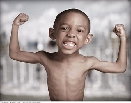 Trẻ suy dinh dưỡng sẽ bị ảnh hưởng tới năng lực nhận thức.