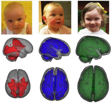Hình ảnh cho thấy sự phát triển chất trắng trong não trẻ theo độ tuổi (từ trái sang phải).
