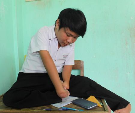 Để làm bài thi, Duẩn kẹp cây bút giữa kẻ 2 ngón tay và chân phải điều khiển tay để viết.