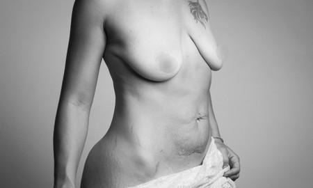Bầu ngực không còn căng đầy