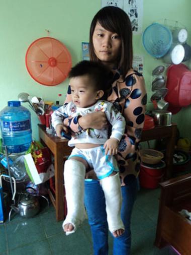 2 chân bị gãy của cháu Đặng Bảo Long đã được bó bột.