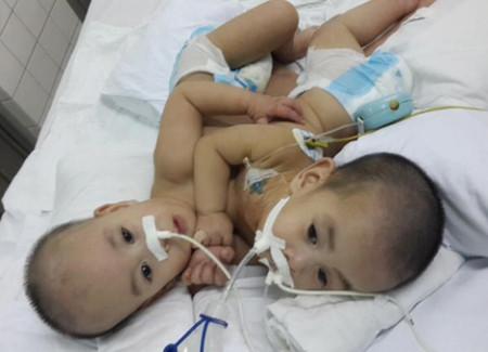 Hai cháu Phi Long - Phi Phụng trước khi được phẫu thuật tách rời