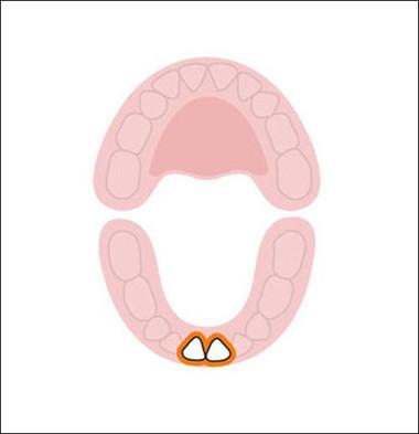 2 chiếc răng cửa dưới thường xuất hiện đầu tiên khi bé được 6-10 tháng tuổi.