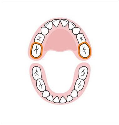 Hai chiếc răng hàm trên cuối cùng sẽ mọc khi nhóc con nhà bạn ở khoảng 25-33 tháng tuổi. Vậy là cho đến khi 3 tuổi, bé sẽ có một nụ cười vô cùng rực rỡ với đầy đủ 20 chiếc răng sữa.