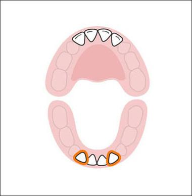 Thứ tự tiếp theo là 2 chiếc răng cửa dưới. Hai răng này mọc khi bé được 10-16 tháng tuổi. Vào thời điểm này, bé nhà bạn đã có thể khoe khá nhiều răng khi cười.