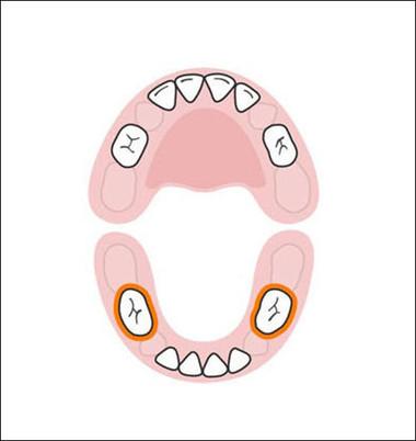 Cũng như 2 răng hàm trên, 2 răng hàm dưới mọc cách một vị trí so với 4 chiếc răng cửa dưới đầu tiên. Chúng xuất hiện khi bé ở vào khoảng 14-18 tháng tuổi.