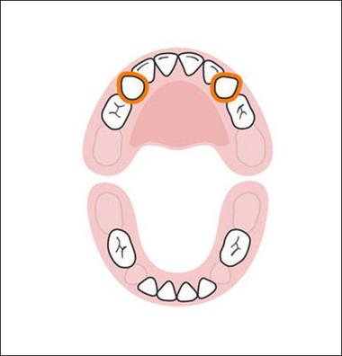Hai chiếc răng nanh hàm trên được mọc vào khoảng 16-22 tháng tuổi sẽ lấp đầy vị trí bị bỏ trống. Có một thực tế thú vị là ngoài cái tên răng nanh, ở một số nơi, họ gọi hai chiếc răng này là răng chó.