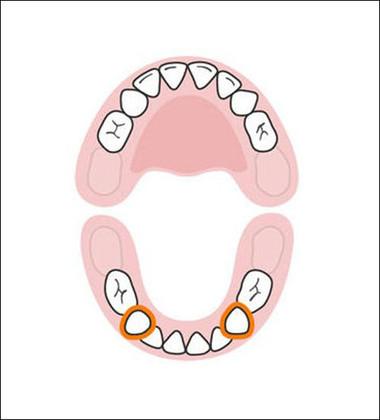 Hai răng nanh hàm dưới xuất hiện khi bé ở khoảng 17-23 tháng tuổi. Bây giờ, bé nhà bạn đã có một nụ cười toàn răng. Nó thực sự rất đẹp vì răng sữa bao giờ cũng trắng hơn răng vĩnh viễn.