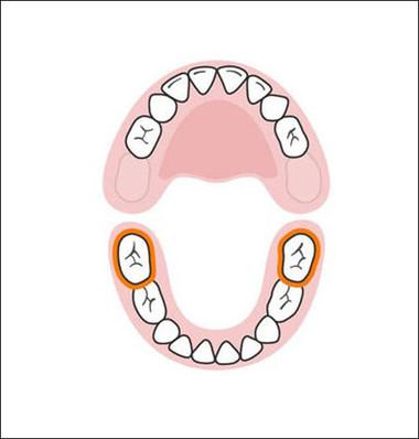 Hai răng hàm phía dưới tiếp theo được mọc khi bé được khoảng 23-31 tháng tuổi. Ở giai đoạn này, nhiều bé thường không cảm thấy khó chịu khi mọc răng vì bé đang bận rộn khám phá nhiều thứ xung quanh.
