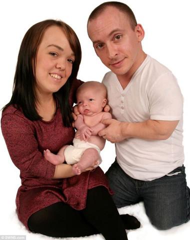 Nathan Phillips là người duy nhất tại Anh bị nhiễm cả hai dạng lùn từ cha mẹ.
