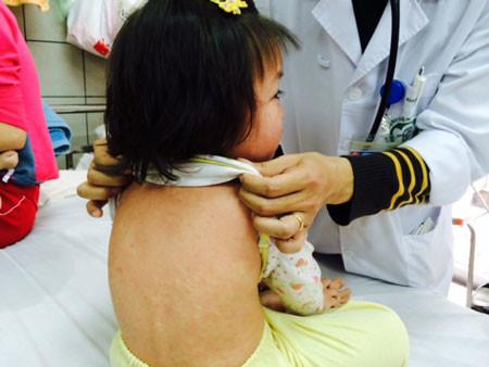 Kiêng kỵ khi trẻ bị sởi giúp điều trị bệnh tốt hơn.