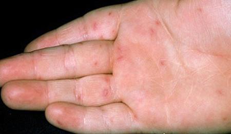 Bệnh tay chân miệng và những điều cần biết